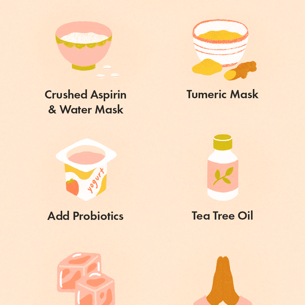 home remedies for facial acne